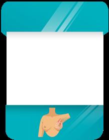Imagem de uma card sobre Carcinoma