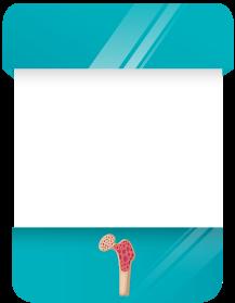 Imagem de uma card sobre Sarcoma